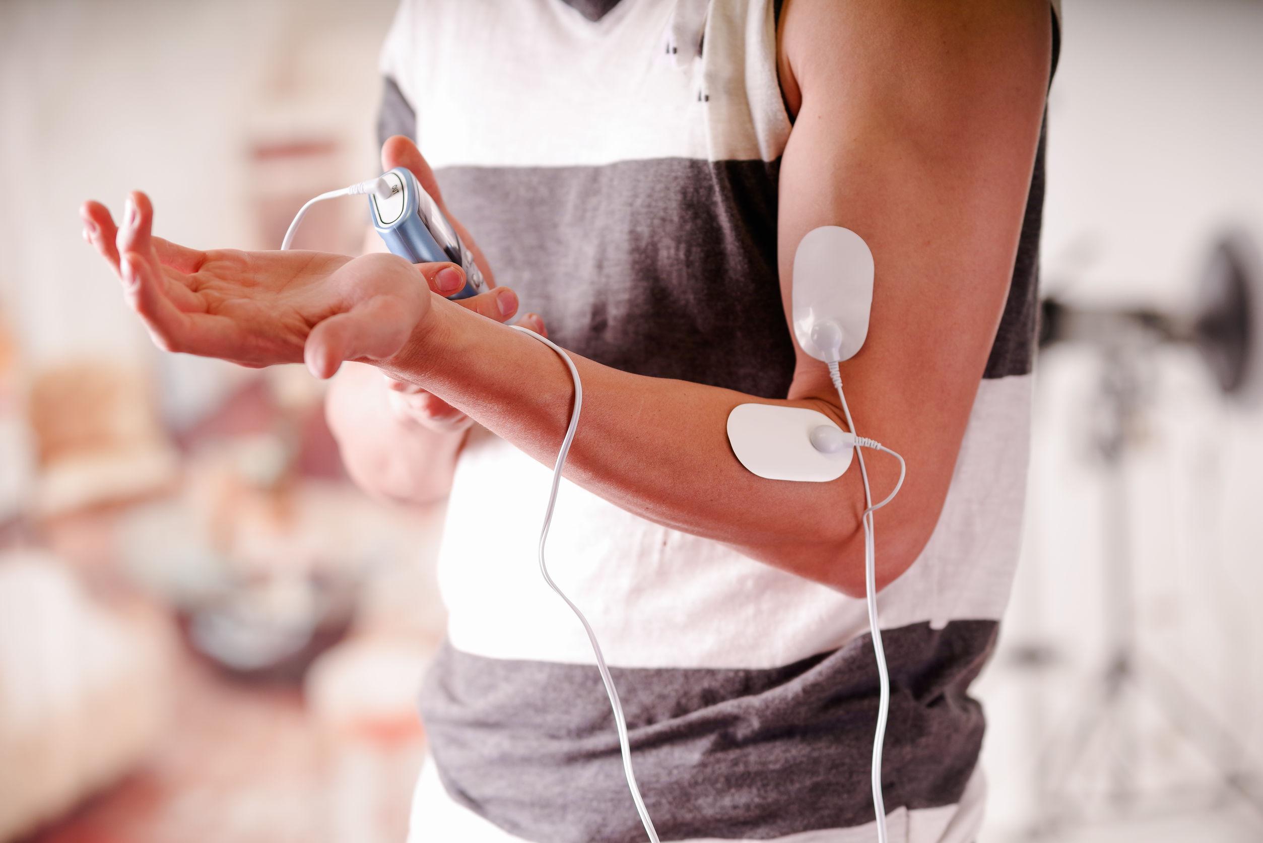 Elettrodi di un elettrostimolatore su un braccio