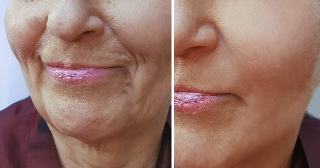 Antes e depois de rosto de mulher com e sem rugas.